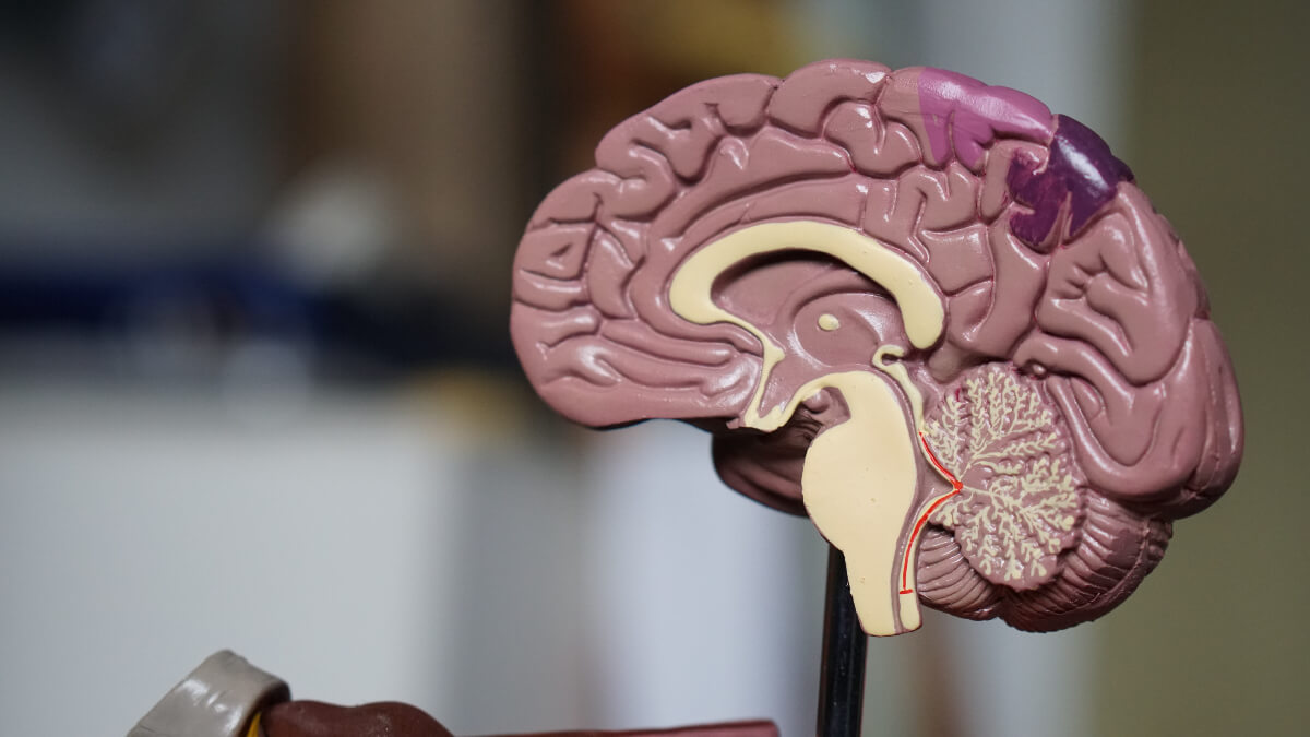 pink and yellow plastic model of the brain, where executive dysfunction is a sympton of ADHD